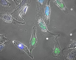 <p>When a cell is exposed to life-threatening conditions, the protein HSF1 (marked in green) initiates an emergency program to prevent permanent damage to the cell.</p>